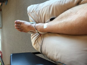 Ankle Electricity